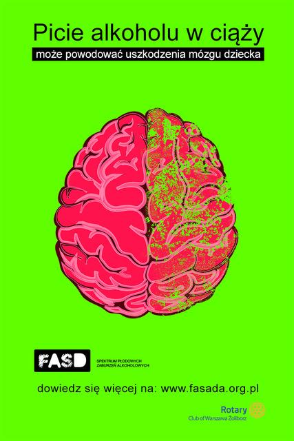 9 wrzesień Światowy Dzień FASD